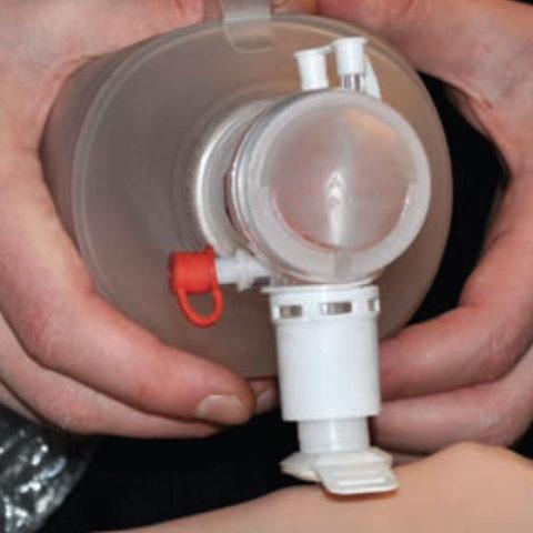 Trokar geri çekilir ve solunum cihazı (ambu, ventilatör vs.) bağlanarak solunum işlevselleştirilir